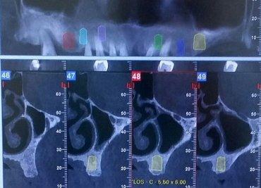 Çene Radyolojisi