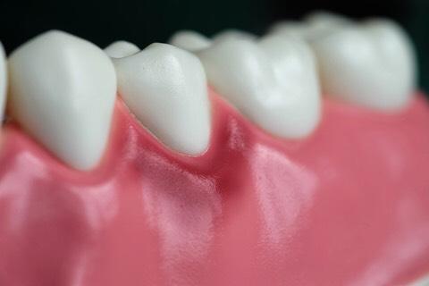 Diş Eti Hastalıkları (Periodontoloji)