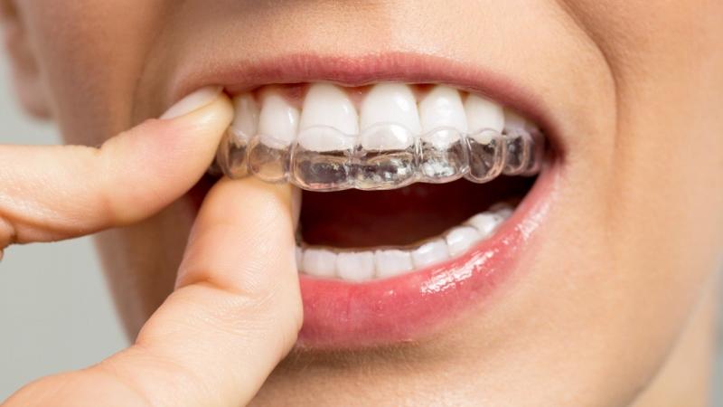 Diş Sıkma ve Gıcırdatma (Bruxism)