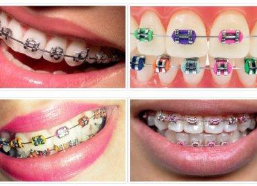 Diş Teli Tedavisi (Ortodonti)